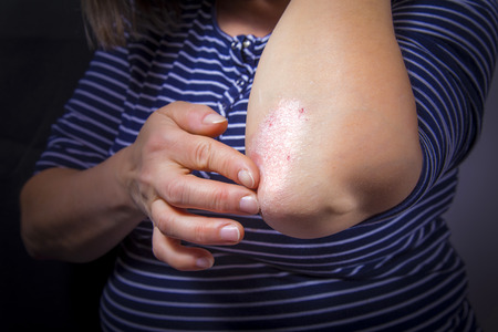 Psoriasis on lady's elbow on dark background. Close up Standard-Bild