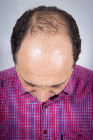 Adult man in his forties having hair loss problem. Results of medical treatment Stock fotó