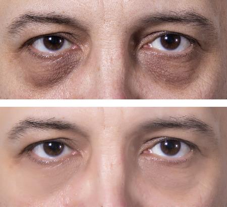 暗いリングと大人の男の目。治療-前後。皮膚治療 写真素材