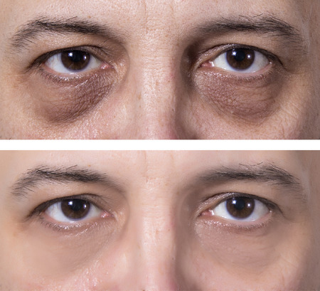 Les yeux de l'homme adulte avec des anneaux sombres. Traitement - AVANT et APRÈS. Traitement de la peau Banque d'images - 87912997