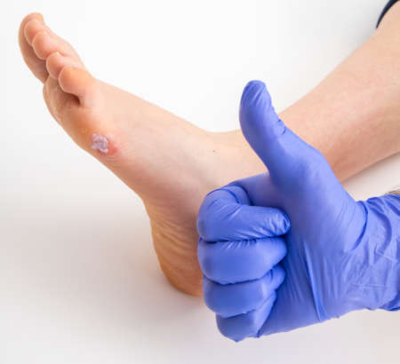 Doctor examining female human leg with foot corn Standard-Bild