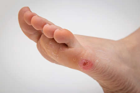 Foot corn on human leg