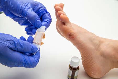 Foot corn medical treatment