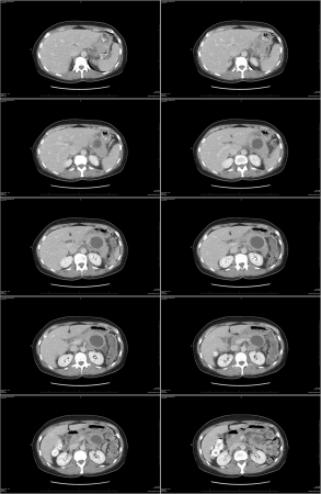 Abdomen cat scan with view of pancreas cyst