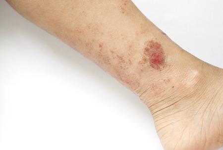 습진 발진은 아이의 다리의 피부에 상처 스톡 콘텐츠