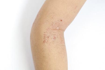 rash: Erupci�n eczema en la piel del codo de un ni�o