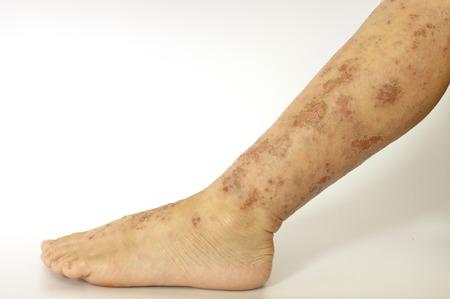 rash: Erupci�n Eczema herida en la piel de la pierna de un ni�o