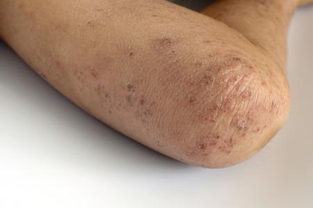 sarpullido: Erupción Eczema herida en la piel de la rodilla de un niño