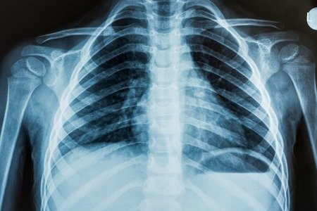 View of a child x-ray film, taken to examine the lungs Stock Photo - 25665107