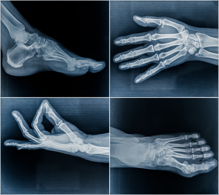 osteoporosis: 50 year old womans x-ray scans from hands and feet