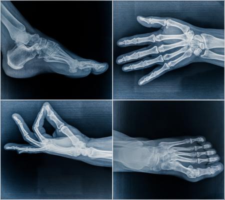osteoporosis: exploraciones de la radiografía de los 50 años de edad, mujer de manos y pies