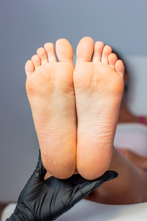 Feet with dry skin before and after treatment Stock fotó