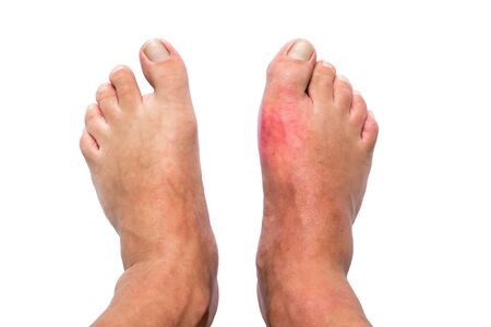 Man with right foot swollen and painful gout inflammation isolated on white background Imagens
