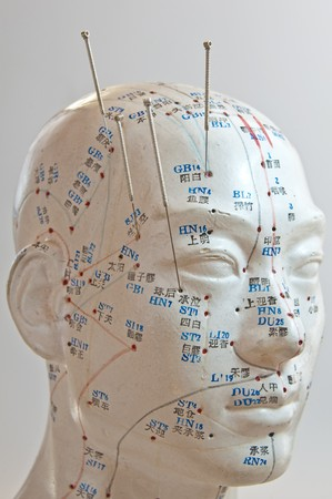 Acupuncture of the head Stock Photo - 8142594