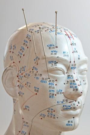 acupuntura china: Acupuntura de la cabeza  Foto de archivo