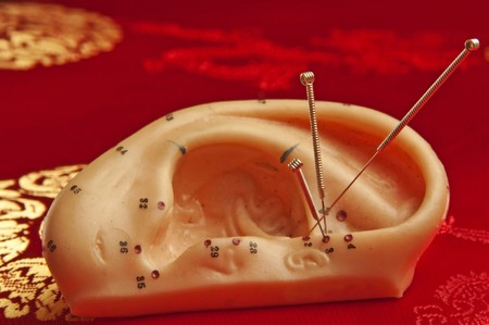 Acupuncture of the ear Stock Photo