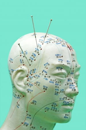 modell: Acupuncture needles