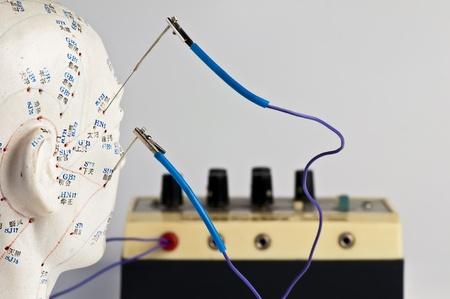 acupuntura eléctrica Foto de archivo