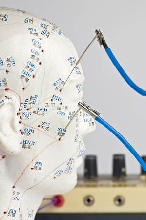 electric-acupuncture Stock Photo - 9220179