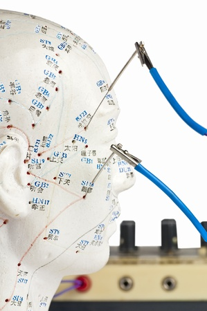 electric-acupuncture Stock Photo - 9332169