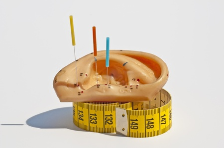 ear acupuncture: acupuncture for weight loss
