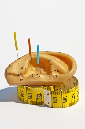 acupuncture for weight loss Stock Photo - 9536930