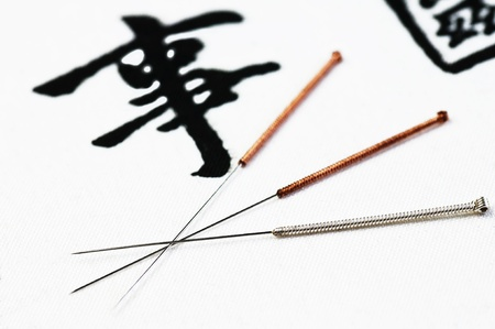 acupuncture needles: acupuncture needles Stock Photo