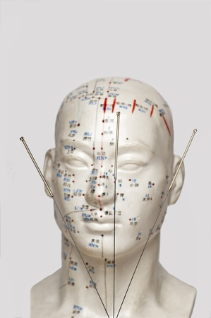 traditional healer: Acupuncture needles