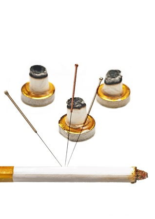 acupuncture to stop smoking Stock Photo - 13317364