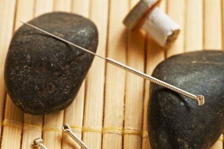 acupuncture needle Stock Photo - 16483145