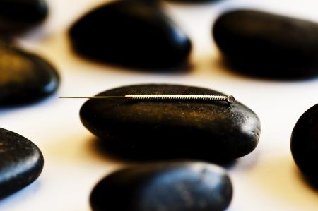 acupuncture: acupuncture needle