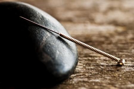 鍼治療の針 写真素材