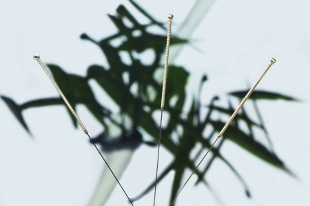 acupuncture needle Stock Photo - 16608848