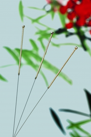 acupuncture needle Stock Photo - 16608847