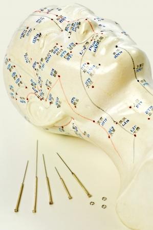 acupuntura china: Las agujas de acupuntura con el modelo de la cabeza Foto de archivo