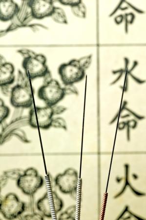 enhancer: acupuncture needles  Stock Photo