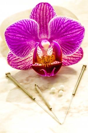 acupuntura china: gl�bulos homeop�ticos y agujas de acupuntura