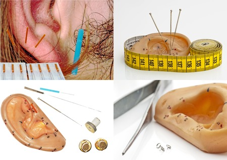 Ear acupuncture Stock Photo - 23440106
