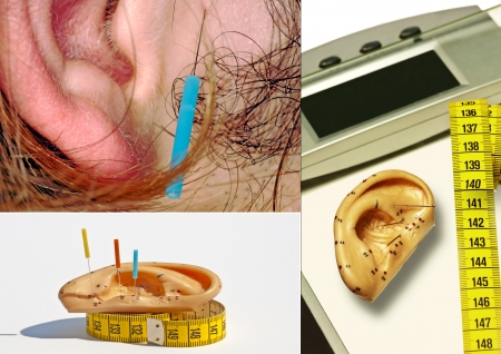 Ear acupuncture for weight loss Stock Photo - 23440104