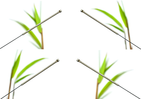 Acupuncture needle Stock Photo - 23647974