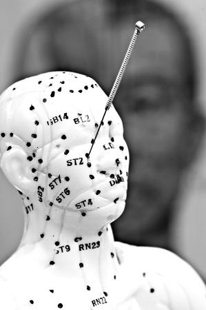 acupuncture needle on head model Stock Photo - 23776372