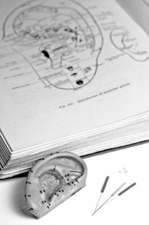 Aghi di agopuntura, modello di orecchio, libro di testo e aghi photo