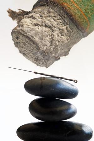 moxibustion: acupuncture needle and moxibustion