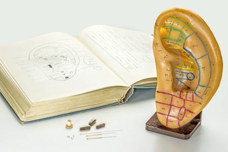 Acupuncture to stop smoking Foto de archivo