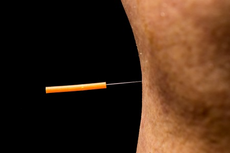 nature cure: acupuncture treatment on leg Stock Photo