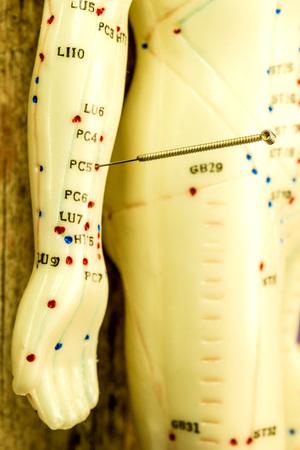acupuncture demonstration on model Standard-Bild - 119603057