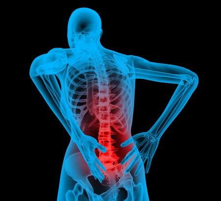 spine x ray: Human backbone in x-ray view, Back Pain, Backache