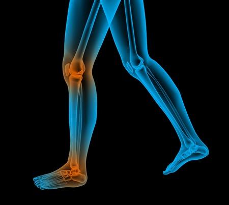 rheumatism: painful foot render 3d illustration