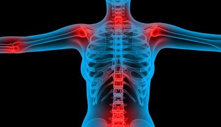 articulaciones: dolor en las articulaciones de rayos X del cuerpo baja Foto de archivo