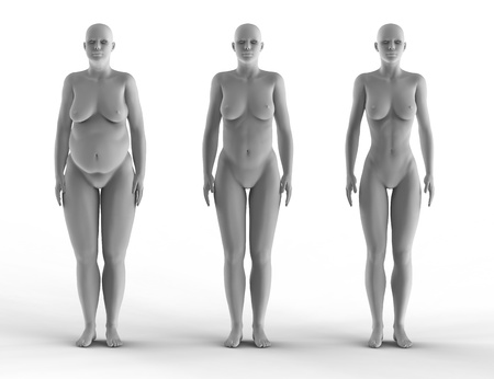 bald girl: weight loss woman